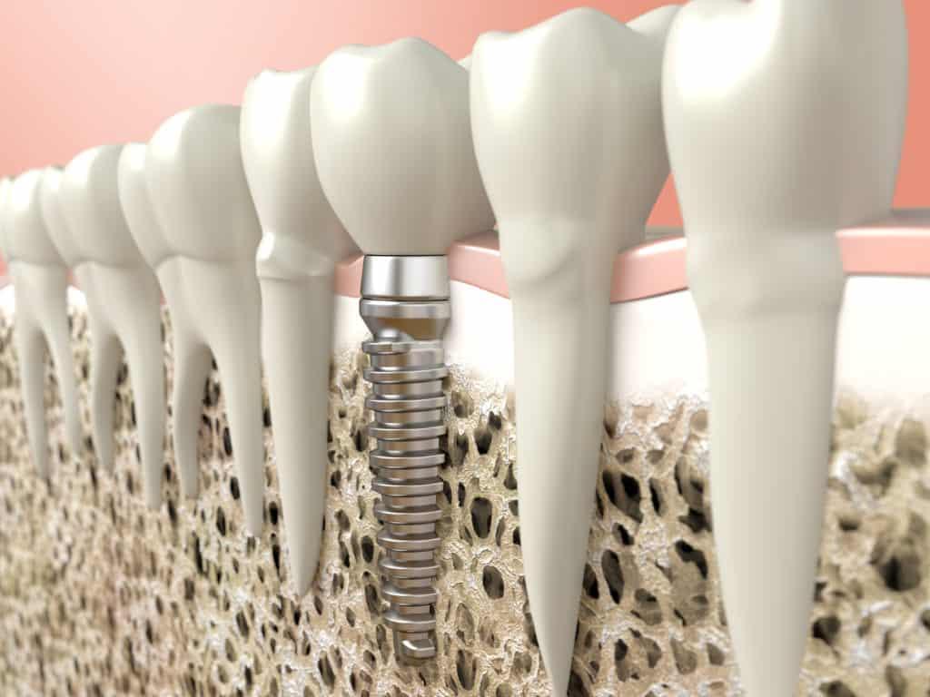carlsbad shores dentistry dental implant image