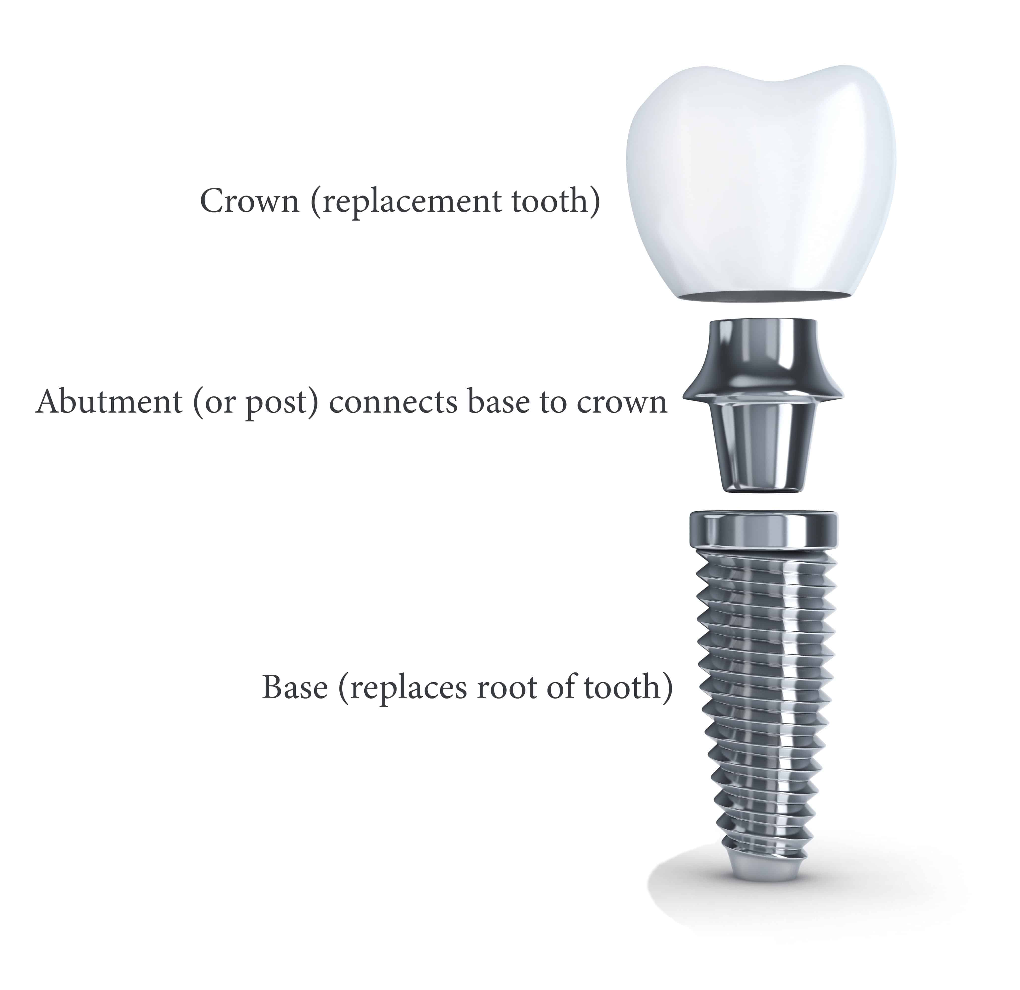 carlsbad shores dentistry tooth implant explainer image