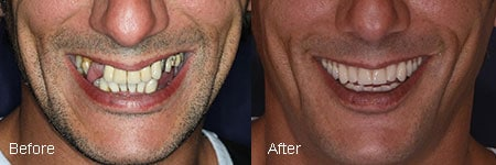 carlsbad shores dentistry before and after dental implant image