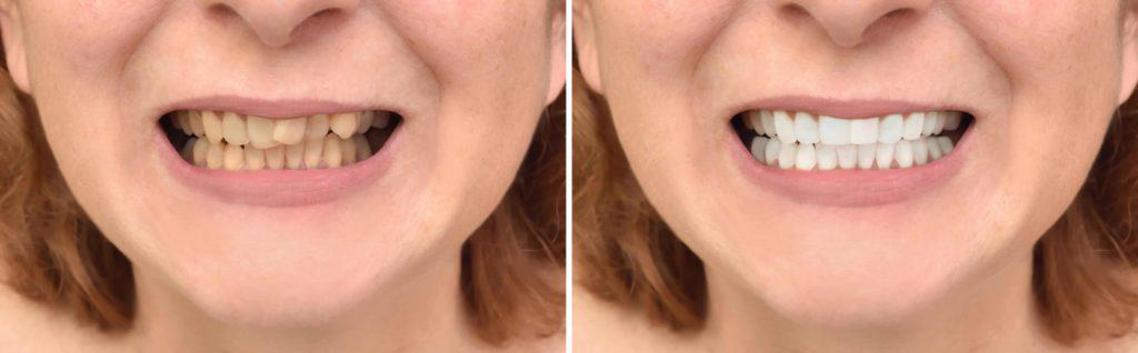 carlsbad shores dentistry before and after invisalign or clear correct and teeth whitening treatment