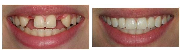 carlsbad shores dentistry dental implants before and after photo