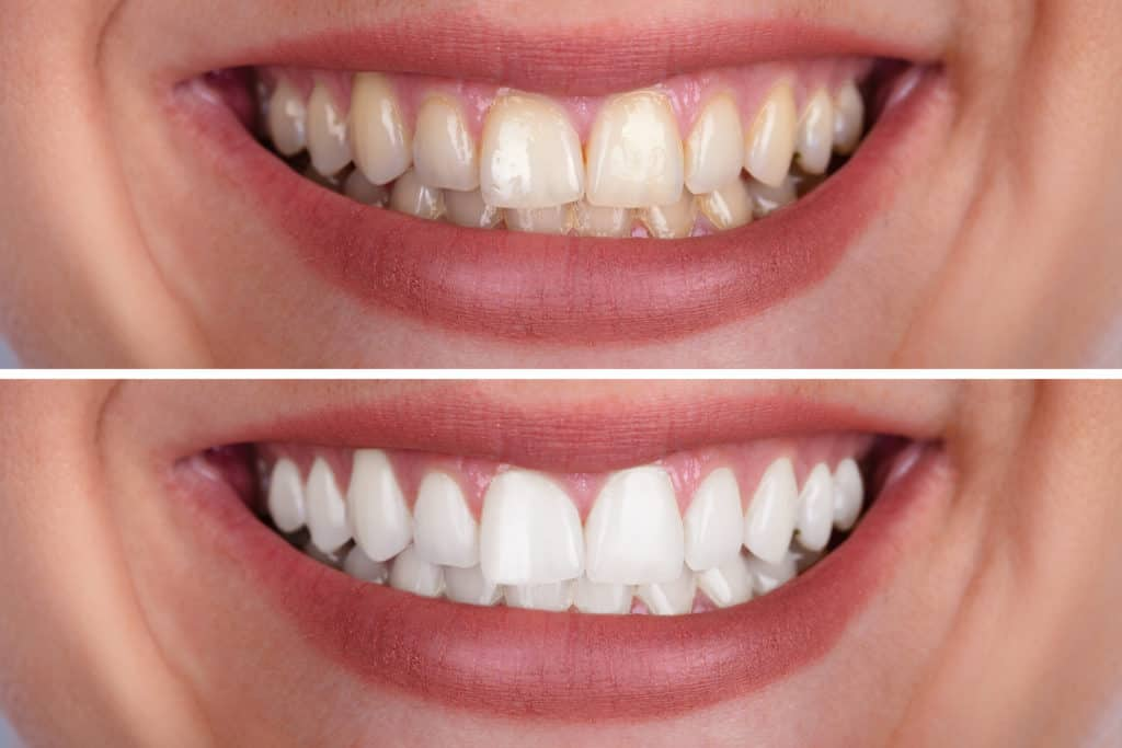 carlsbad shores dentistry teeth whitening before and after