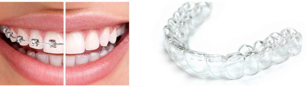 carlsbad shores dentistry clear aligners vs braces