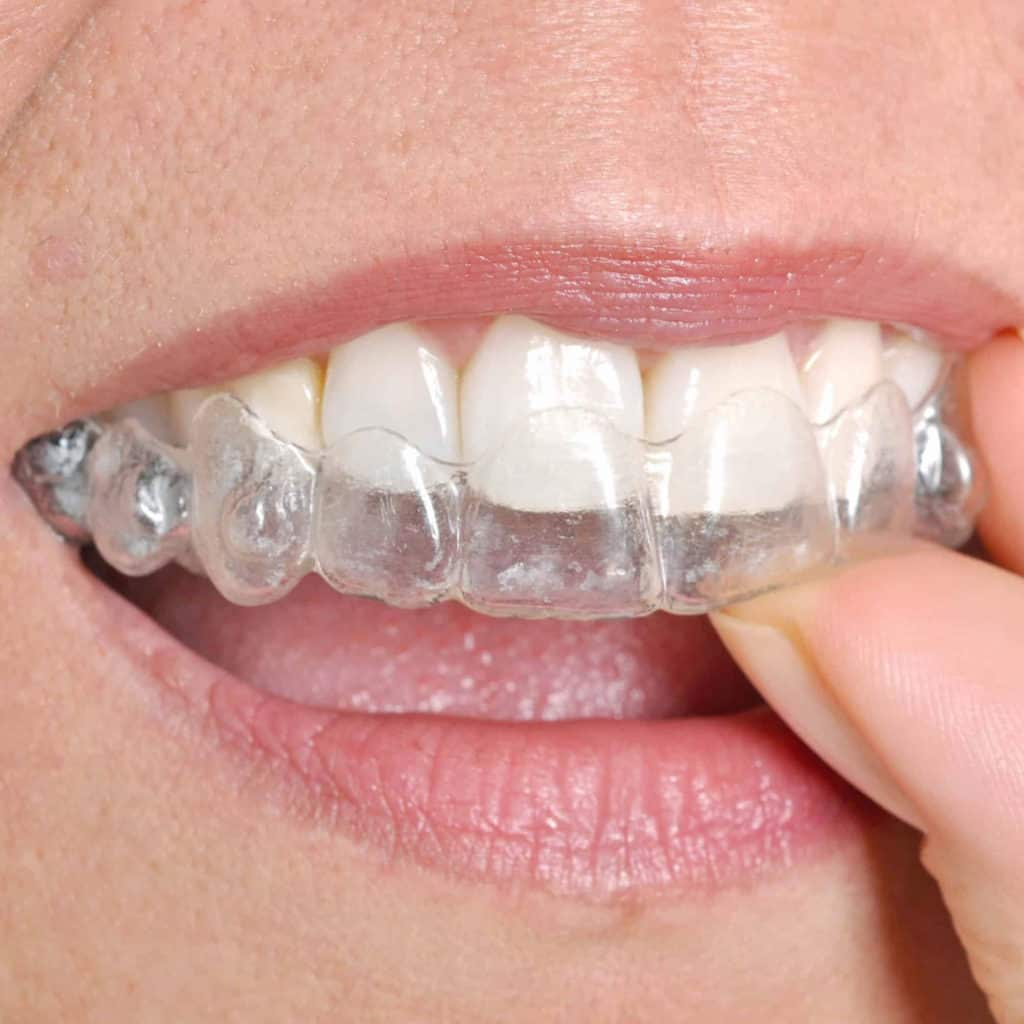 carlsbad shores dentistry lady with invisalign or clear correct tray