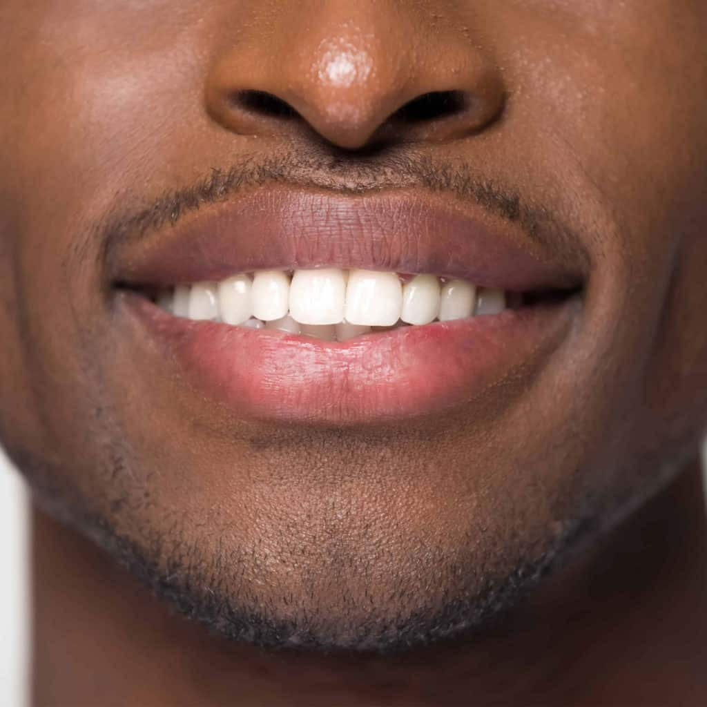 carlsbad shores dentistry young man after invisalign or clear correct treatment