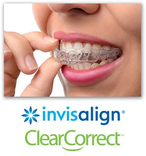 carlsbad shores dentistry invisalign and clearcorrect
