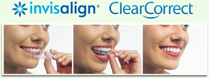 carlsbad shores dentistry invisalign and clearcorrect clear aligners